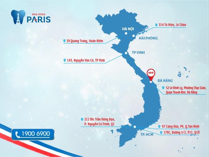 nha khoa Paris 39 Quang Trung 4
