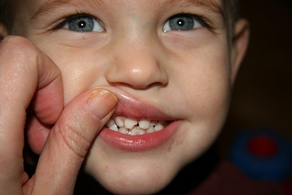 Bé bị mẻ răng sữa khắc phục sao để nhanh và an toàn nhất? 1
