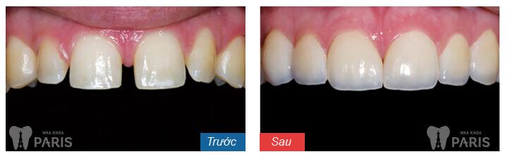 4 Cách làm khít răng cửa bị thưa mà bạn không nên bỏ qua 2