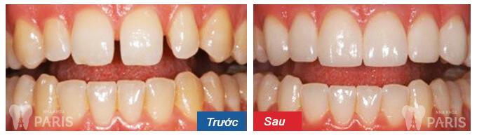 """Tiết lộ """"bí kíp"""" để có hàm răng đẹp như mong muốn 4"""