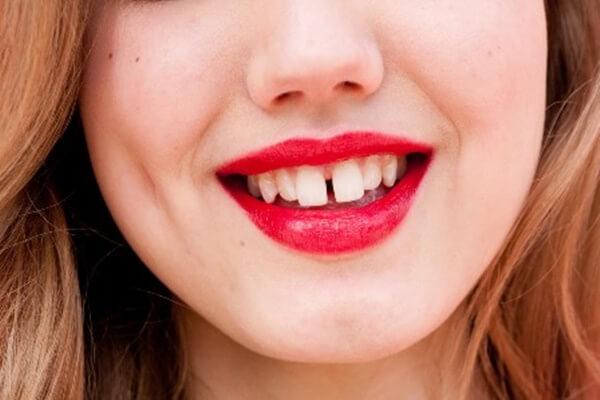 Cách trám răng cửa thưa cho răng đẹp nhanh chóng Tiết kiệm HIỆU QUẢ 1