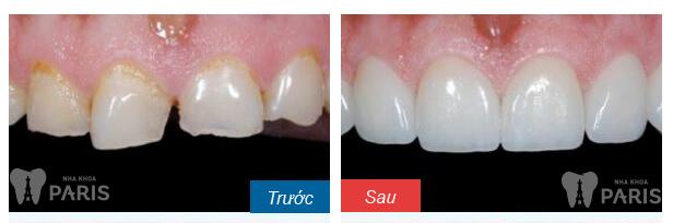 4 Cách làm khít răng cửa bị thưa mà bạn không nên bỏ qua 3