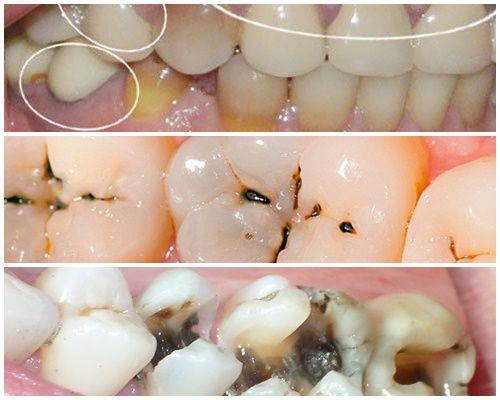 Dấu hiệu nhận biết sâu răng & cách chữa trị DỨT ĐIỂM ở từng thời kỳ 1