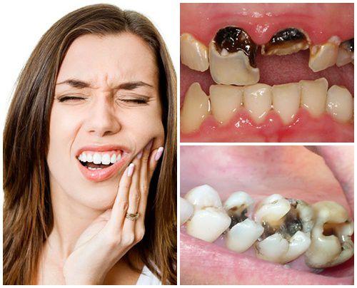 Dấu hiệu nhận biết sâu răng & cách chữa trị DỨT ĐIỂM ở từng thời kỳ 4