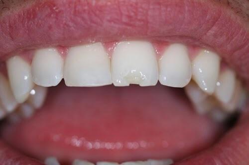 Kết quả hình ảnh cho Những gì bạn có thể làm khi răng cửa bị mẻ