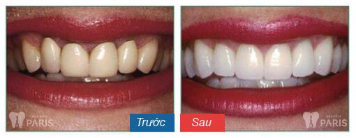 """Tiết lộ """"bí kíp"""" để có hàm răng đẹp như mong muốn 3"""