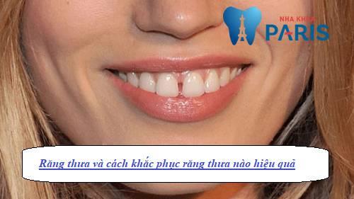 răng thưa và cách khắc phục, răng cửa thưa và cách khắc phục