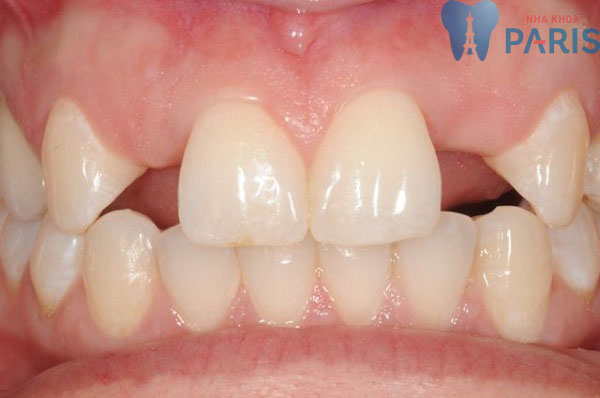 Vì sao răng bị thưa? Cách làm răng KHÍT lại Nhanh Chóng - Tiết Kiệm 1
