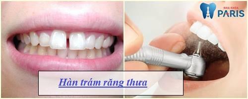 Cách chữa răng thưa đảm bảo hiệu quả DỨT ĐIỂM chỉ trong 15 phút 2