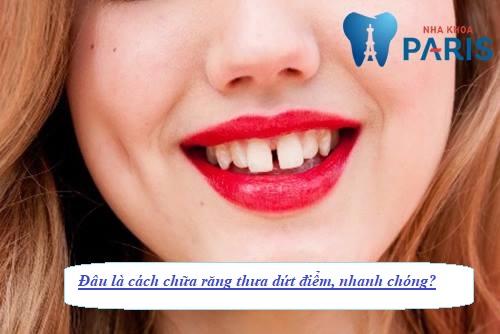 Cách chữa răng thưa đảm bảo hiệu quả DỨT ĐIỂM chỉ trong 15 phút 1