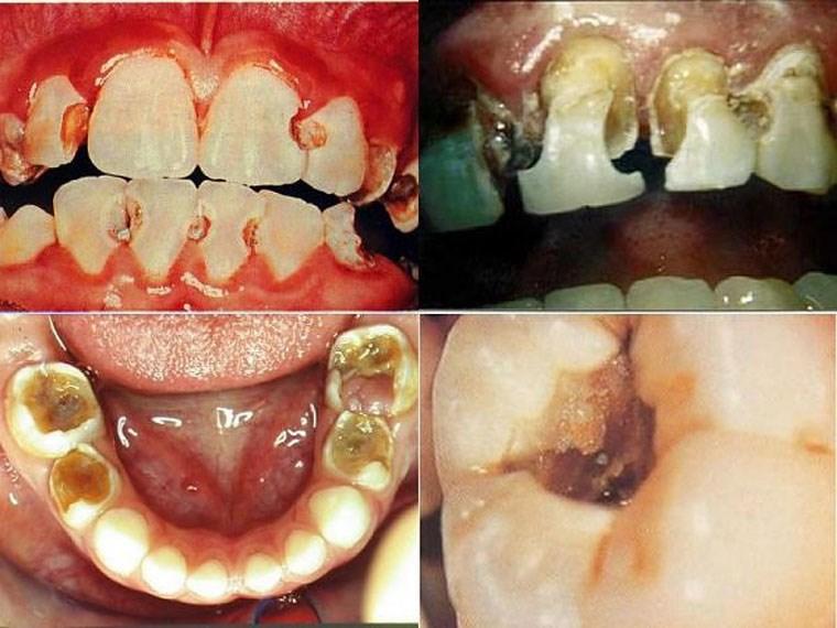 BÁC SĨ TƯ VẤN - Top 5 tác hại bệnh răng miệng nguy hiểm 2