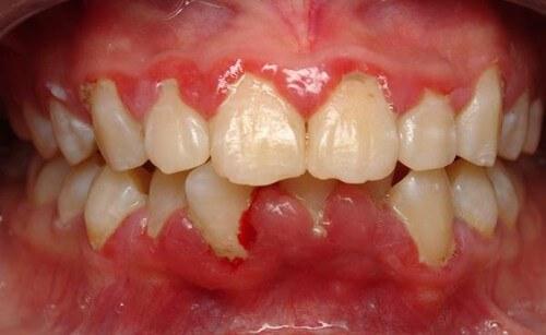 Những dấu hiệu bệnh răng miệng bạn không nên chủ quan 1