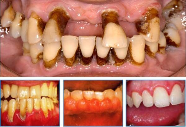 Sâu răng bị nổi hạch - Nguyên nhân, độ nguy hiểm và cách điều trị 2