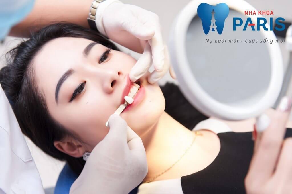Vai trò răng khểnh là gì? Trám răng khểnh có làm răng dài ra không? 2