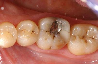 """""""Mách nhỏ"""" cách khắc phục răng trám bị sâu lại hiệu quả nhất 1"""