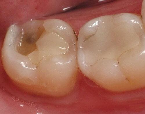 Nguyên nhân và cách khắc phục răng hàm bị vỡ lớn