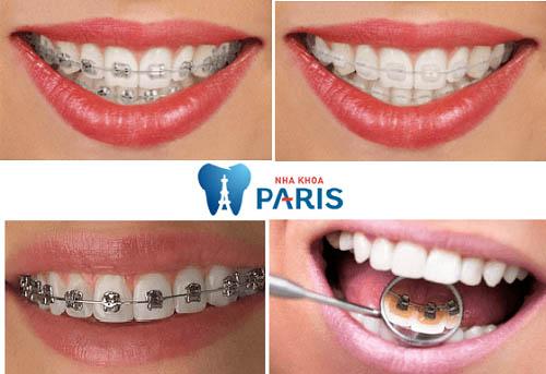 TOP 4 Cách làm khít răng thưa PHỔ BIẾN bạn nên biết 1