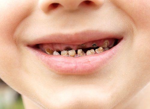 Trẻ em bị sâu răng sữa nên điều trị như thế nào hiệu quả?