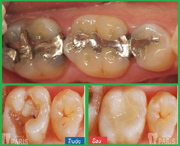 Dấu hiệu nhận biết răng sâu vào tủy & cách điều trị TRIỆT ĐỂ NHẤT 2