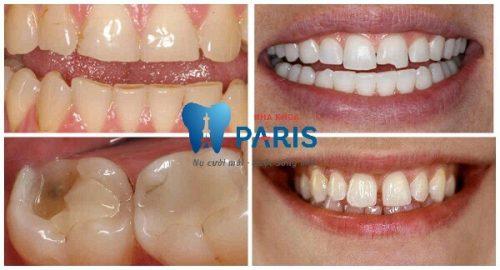 Các cách làm răng đều không cần niềng HIỆU QUẢ NHẤT!! 2