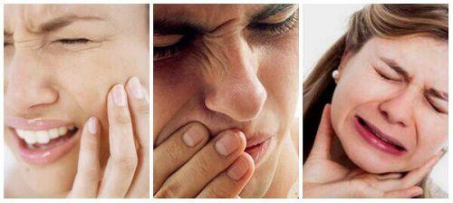 Cách làm răng hết ê buốt