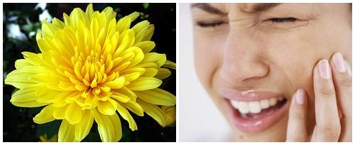 Top 5 cách chữa sâu răng dân gian đơn giản mà hiệu quả