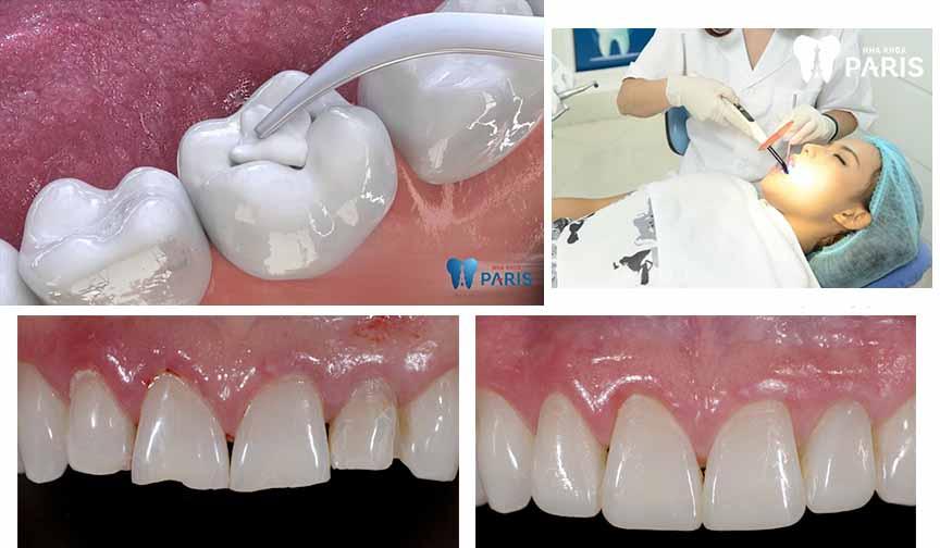 Cách khắc phục răng bị mẻ 3