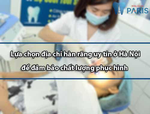 Địa chỉ hàn răng Uy tín ở Hà Nội – Chất lượng đảm bảo nhất