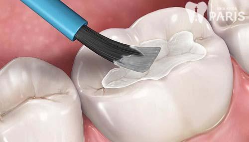 Có CẦN THIẾT phải trám răng sâu nhẹ hay không? [Chuyên gia tư vấn] 2