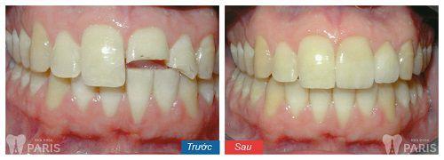 răng mẻ có trám được không
