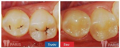 Top 3 cách chữa sâu răng bằng tỏi tại nhà hiệu quả nhất 6