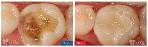 Top 3 cách chữa sâu răng bằng tỏi tại nhà hiệu quả nhất 7