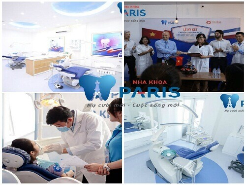 Trám răng cửa bị mẻ phục hồi răng nguyên vẹn KHÔNG lộ vết trám 2