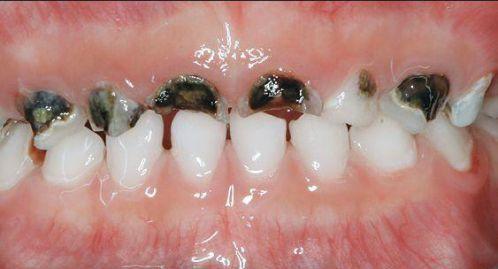 Cách chữa sâu răng ở trẻ em hiệu quả nhất chỉ với 3 bước đơn giản 3