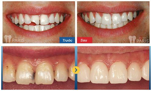 4 Lưu ý khi hàn răng để có vết hàn bám chắc không bong khi nhai 1