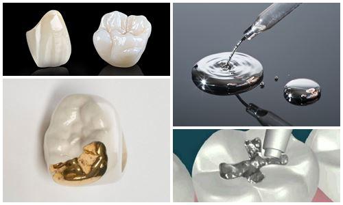 4 Lưu ý khi hàn răng để có vết hàn bám chắc không bong khi nhai 2