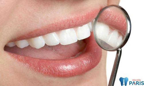 Địa chỉ trám răng thẩm mỹ ở đâu Tốt - Uy tín - Bảo hành toàn quốc? 1