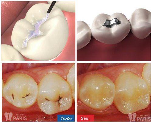Bạn có biết vì sao phải hàn răng khi bị sâu? [BS Tư Vấn] 1