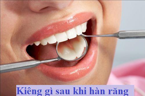 Kinh nghiệm: Kiêng gì sau khi hàn răng để vết hàn KHÔNG BONG 1
