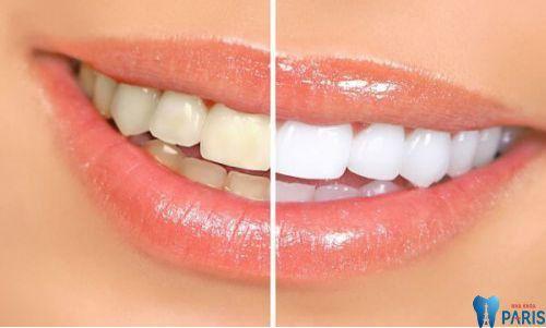 """Chuyên gia nha khoa tư vấn : """"Khi nào thì nên hàn răng"""" 3"""