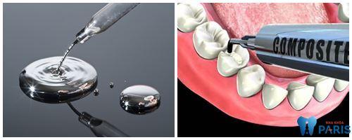 Lựa chọn hàn răng bằng Amalgam hay Composite là tốt nhất 1