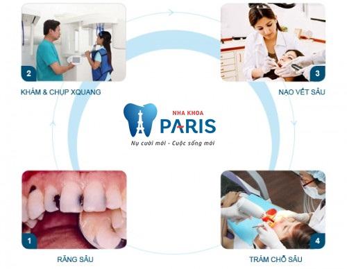 quy trình hàn răng sâu1