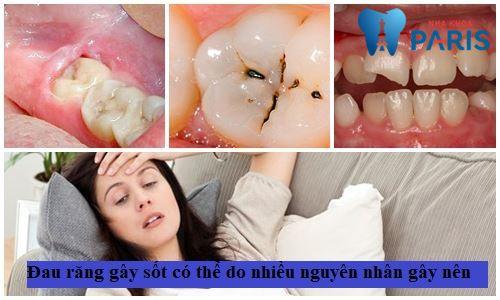 Chuyên gia chia sẻ: Phải làm sao khi bị đau răng gây sốt