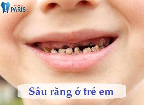 Cách chữa sâu răng ở trẻ em hiệu quả nhất chỉ với 3 bước đơn giản 1