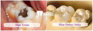 Trám răng sâu nặng NHANH THẦN TỐC hiệu quả vĩnh viễn 2