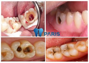 3 bước thực hiện trám răng sâu hiệu quả không bong bật
