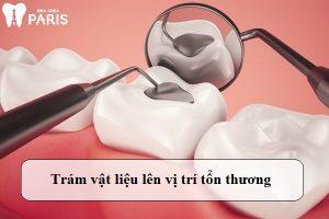 trám răng sâu nặng