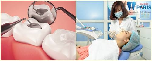 Hàn răng sâu có đau không? Lưu ý CẦN PHẢI BIẾT sau khi hàn răng  2