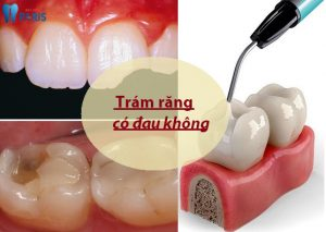 Trám răng có đau không? Chia sẻ THỰC TẾ của những người từng trải 1