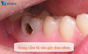 Top 4 cách chữa đau nhức răng cấm VĨNH VIỄN an toàn chỉ sau 1 lần 1